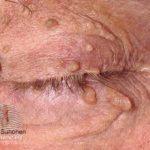 eye skin tag