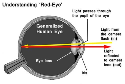 Red Eye Graphic