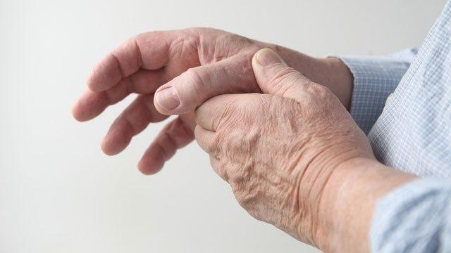 Hands arthritis