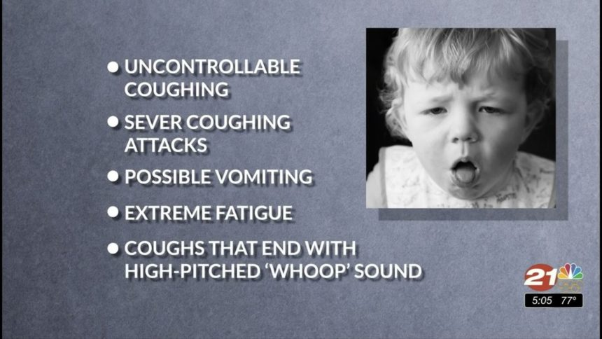 Whooping cough pertussis symptoms