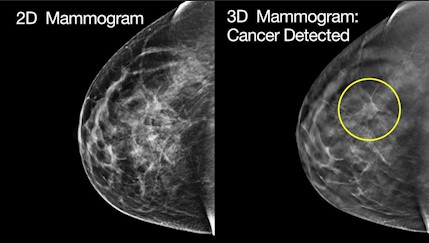 mammogram images